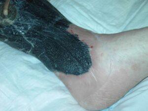 Vakuumverband: Die flächenhafte Wunde ist in diesem Beispiel mit einem schwarzen Schaumstoff bedeckt, dieser wiederum mit einer Klebefolie dicht verschlossen. Links oben ist der Saugschlauch sichtbar.